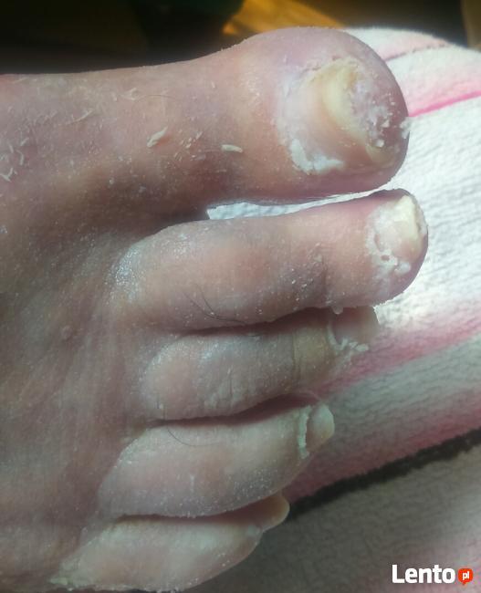Leczniczy pedicure dla seniorów, kosmetyczny, manicure