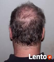 Zatrzymaj Łysienie Naturalny Porost Włosów