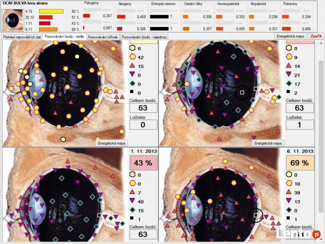 Diagnostyka NLS: Metatron, Diacom, 3D-NLS, inne - sprzedaż i
