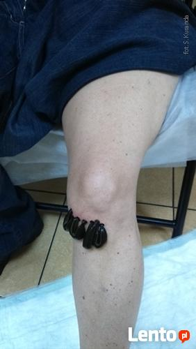 Leczenie Pijawkami - HOLISTIC hirudoterapia i medycyna natur