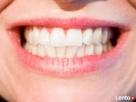 Wybielanie zębów metodą duo Bydgoszcz