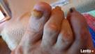 Leczniczy pedicure dla seniorów, kosmetyczny, manicure - 5