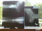 KUPIĘ wyroby ze srebra oraz klisze RTG 506-348-194 Skierniewice
