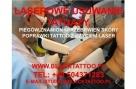 Laserowe usuwanie tatuaży piegów znamion itp