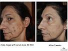 OKAZJA Jeunesse LUMINESCE serum komórkowe LIFTING twarzy - 5