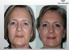 OKAZJA Jeunesse LUMINESCE serum komórkowe LIFTING twarzy - 8