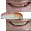 Piękne, równe i wybielone zęby w 5 minut... Szczecin
