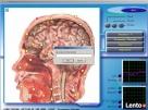 Diagnostyka NLS: Metatron, Diacom, 3D-NLS, inne - sprzedaż i - 2
