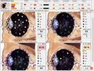 Diagnostyka NLS: Metatron, Diacom, 3D-NLS, inne - sprzedaż i - 8