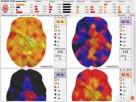 Diagnostyka NLS: Metatron, Diacom, 3D-NLS, inne - sprzedaż i - 4
