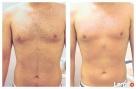 Męska depilacja intymna, brazylijska, Boyzilian-PASTA CUKROWA - 5
